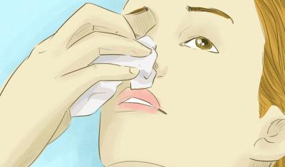Лейкоз кожные проявления