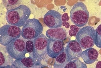 плазмоцитома