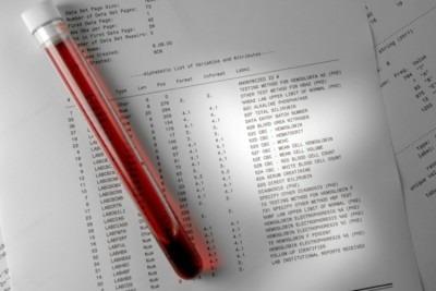 АСТ в анализе крови