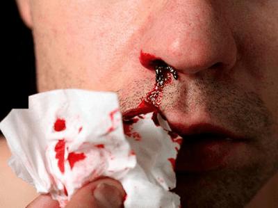 симптомы рака крови