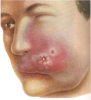 Септикопиемия