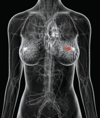 рентгенография груди