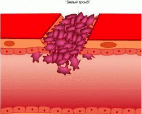 адгезию тромбоцитов