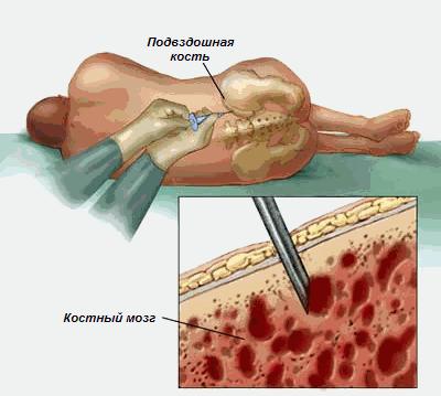 трансплантации клеток спинного мозга