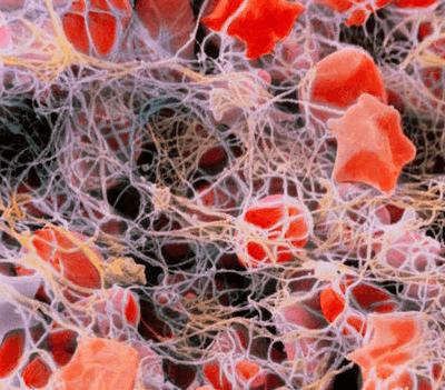 первичный тромбоцитоз