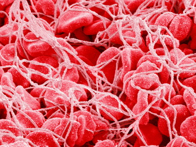 тромбоцитоз