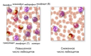 Как лечат повышенные лейкоциты при беременности