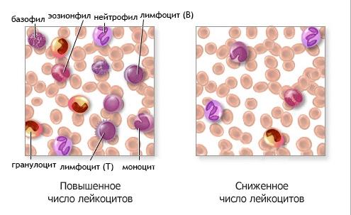 лейкоциты повышены и понижены
