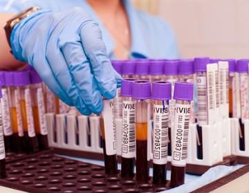 лейкоциты анализ