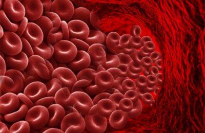 высокий уровень вязкости крови