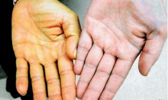 Низкий гемоглобин – причины и симптомы низкого гемоглобина