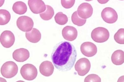 Повышенные лимфоциты анализа крови
