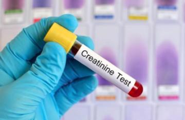 Креатинин в крови повышена причины у детей
