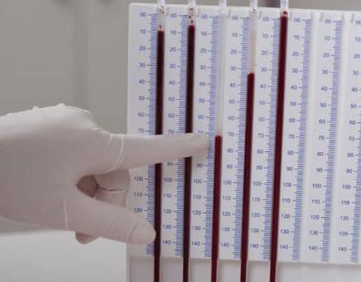 Изменения в общем анализе крови при железодефицитной анемии thumbnail