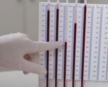 Система для определения соэ методом вестергрена для капиллярной крови