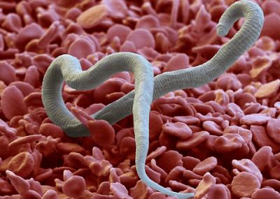 крапивница от паразитов