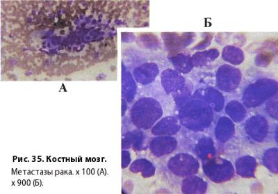 Гемоглобин 100 у женщин рак