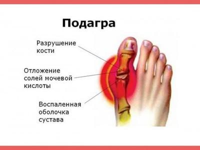 Выведение солей мочевой кислоты из суставов ночные боли плечевых суставов