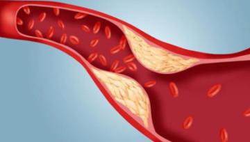 Как правильно сдавать кровь на холестерин