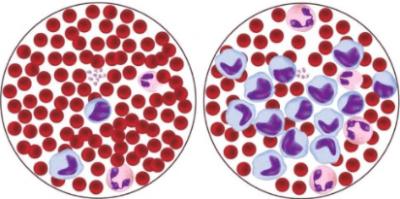 Анализ крови при спид показатели