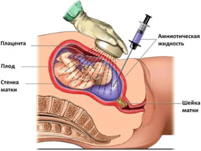 Анализ на патологию плода