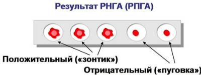 Как расшифровывается РПГА анализ крови назначение и подготовка к анализу