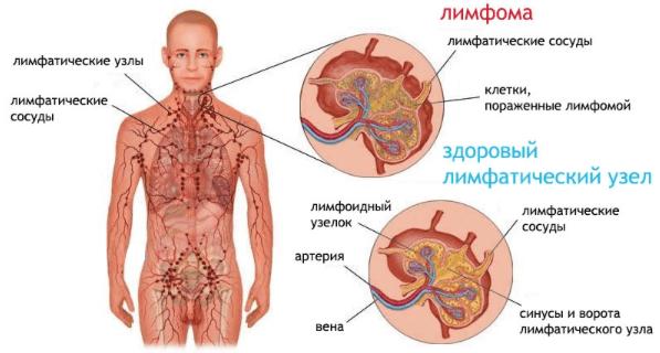 Анализ крови при лимфоме Ходжкина