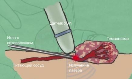 Гемангиома на губе у взрослых: лечение, удаление, причины у ребенка
