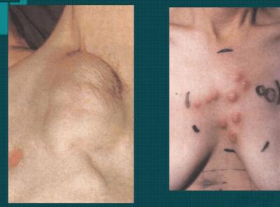 Лимфосаркома и лимфобластома: симптомы, лечение и прогноз