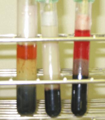 Хилез сыворотки крови или «липемия»: причины возникновения и особенности лечения
