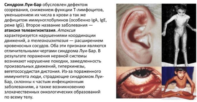 Синдром Луи-Бар