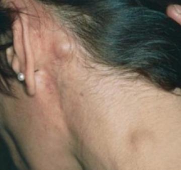 Неходжинская лимфома исекс