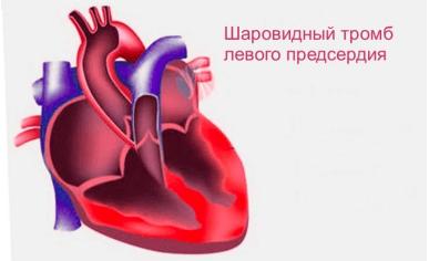 Тромб в сердце – причины, симптомы и лечение